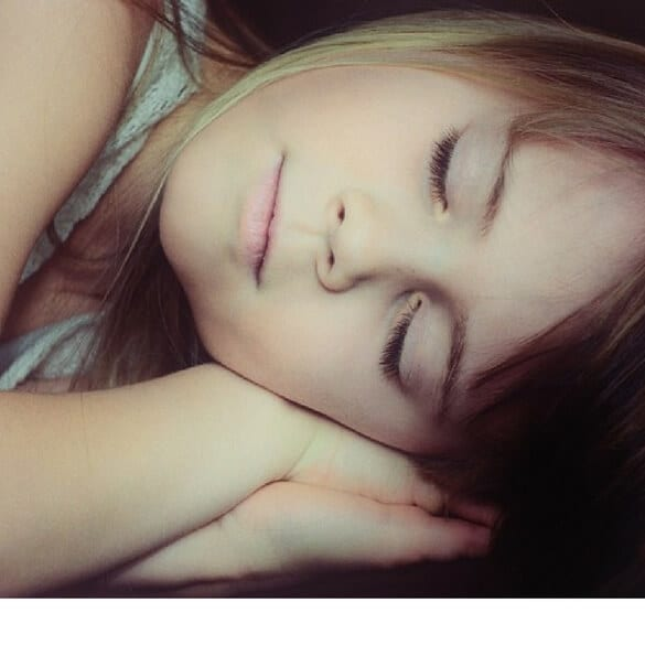 Young girl sleeping - Enuresis - Bed Wetting Treatment